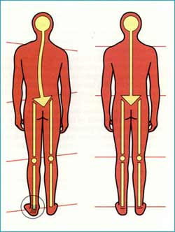 short-leg